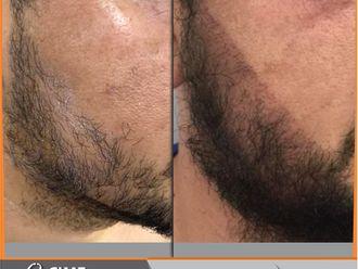 Tratamientos para el cabello-741346