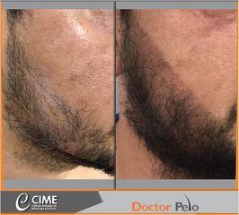 Tratamiento capilar - barba - Dr. Juan Guillermo Cadena