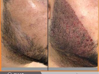 Implantes de cabello-741347