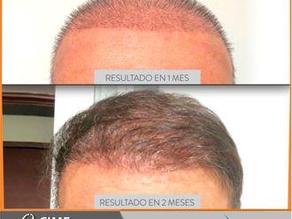 Implantes de cabello-741354