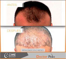 Implante Capilar METODO FUE - Dr. Juan Guillermo Cadena