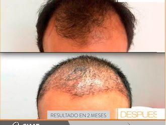 Implantes de cabello-741357