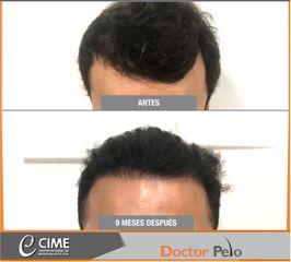 Impalnte Capilar - METODO FUE - Dr. Juan Guillermo Cadena