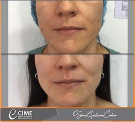 Tratamiento pigmentación - Dr. Juan Guillermo Cadena