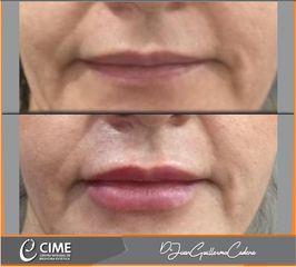 Perfilamiento de labios - Dr. Juan Guillermo Cadena