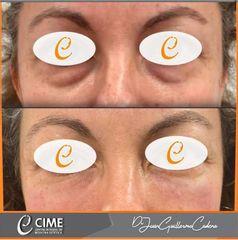 Eliminación de ojeras - Dr. Juan Guillermo Cadena