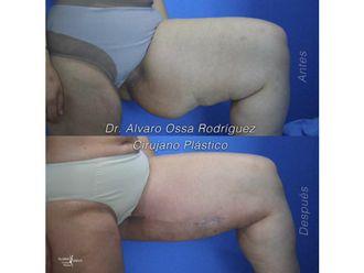Cirugía reconstructiva - 627297