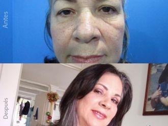 Rejuvenecimiento facial - 739025
