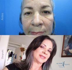 Rejuvenecimiento facial - Dr. Álvaro Ossa