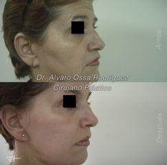 Ácido hialurónico - Dr. Álvaro Ossa