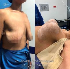 Levantamiento de senos - Dr. Álvaro Ossa