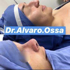 Rinoplastia - Dr. Álvaro Ossa