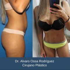 Liposucción - Dr. Álvaro Ossa
