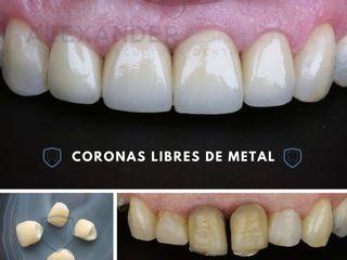 Coronas Libre de Metal