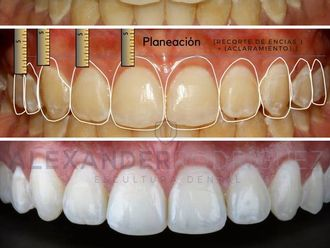 Blanqueamiento dental - 623387