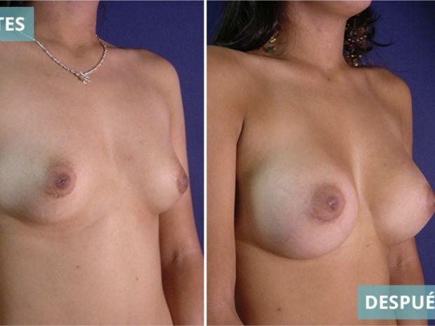 Hominis. Dr. Juan A. Sanabria. Cirugía plástica & SPA