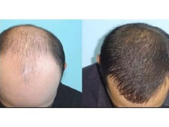 Alopecia - 660521