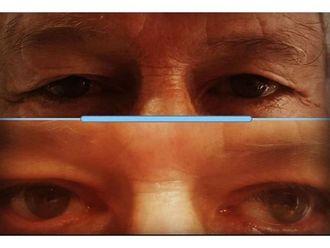Blefaroplastia-660524