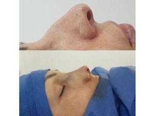 Rinoplastia - Dr. Juan A. Sanabria