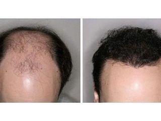 Implante capilar - Dr. Juan A. Sanabria