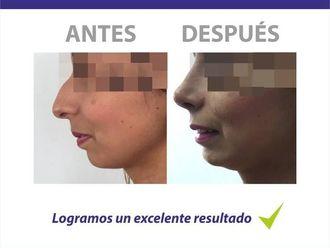Cirugía Plástica-586480
