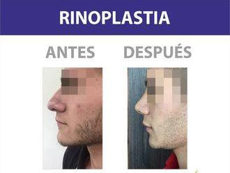 Rinoplastia-586948