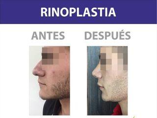 RINOPLASTIA