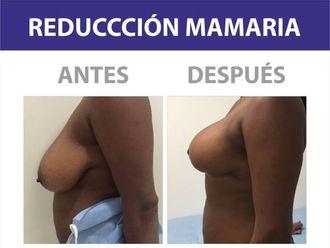 Mamoplastia de reducción-586949