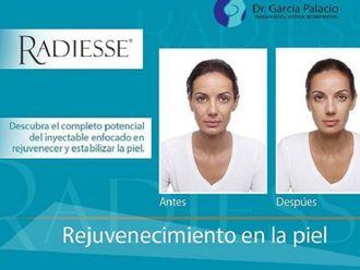 Rejuvenecimiento facial-606976