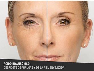Ácido hialurónico-606980