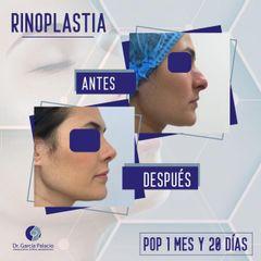 Rinoplastia - Dr. García Palacio