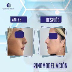 Rinomodelación - Dr. García Palacio