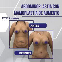 Abdominoplastia - Dr. García Palacio