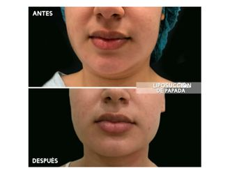 Liposucción-626798