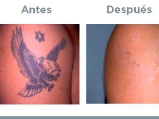 Borrar tatuajes