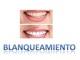 Blanqueamiento dental - 534596