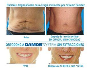 Ortodoncia - 536852