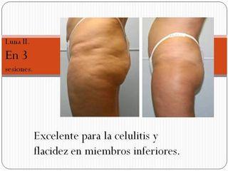 Tratamiento Contra Celulitis y Grasa Localizada