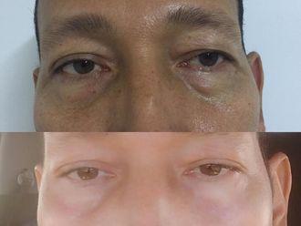 Blefaroplastia-633755