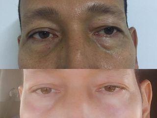 Blefaroplastia con Láser de Erbio