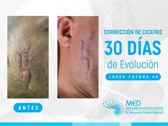 Cicatrices-636048