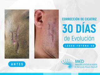 Corrección Cicatriz con Láser de Erbio *Fotona* (1er Láser)