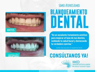 Blanqueamiento dental-636623