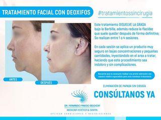 Rejuvenecimiento Facial SIN CIRUGIAS con DEOXIFOS