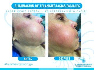 Telangiectasias Faciales con Laser de Erbio Fotona