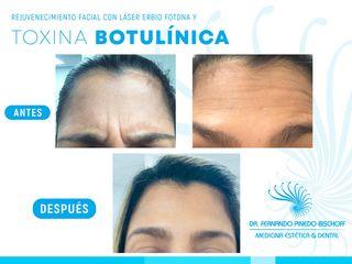 Rejuvenecimiento Facial con Laser de Erbio y Toxina Botulinica