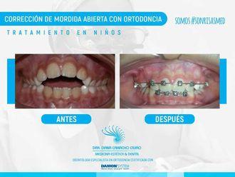 Ortodoncia - 640442