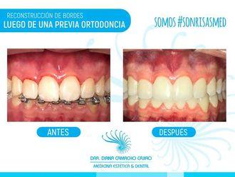 Ortodoncia - 640468