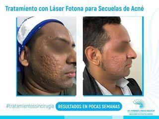 Tratamiento Para Eliminar las Secuelas de Acné con Láser de Fotona