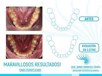 Ortodoncia - 642427